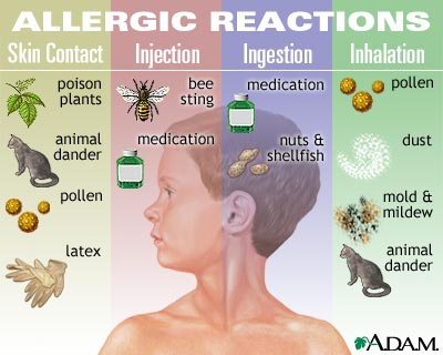 Delving into allergies and what they cause