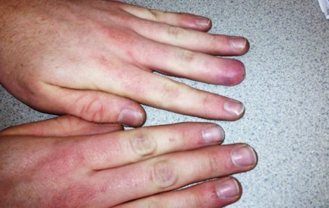 Student loses part of finger, adjusts to life after incident